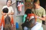 Шестилетняя китаянка, прозванная девочкой-кошкой, страдает от редкой болезни