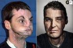 После операции по пересадке лица американец сделал карьеру фотомодели