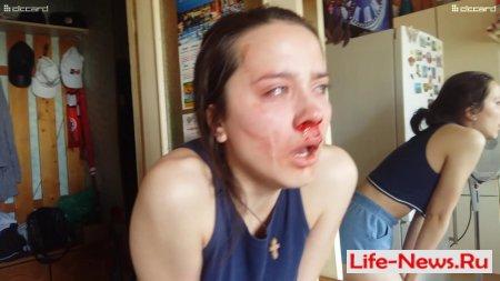 В Удмуртии полицейские применили спецсредства и избили девочку подростка, за то что она снимала на мобильник
